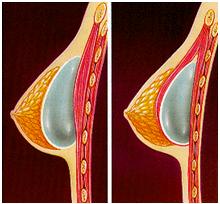Protesi mastoplastica