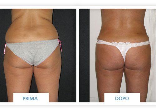 Liposuzione Prima & Dopo 1