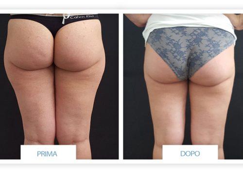 Liposuzione Prima & Dopo 2
