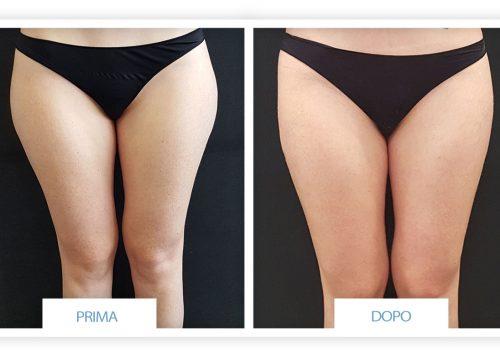 Liposuzione Prima & Dopo 3