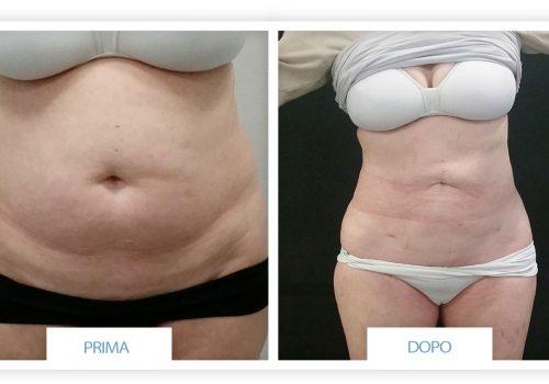 Liposuzione (addome E Fianchi) Prima & Dopo 4