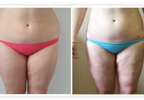 Liposuzione (addome, Glutei E Fianchi) Prima & Dopo 5