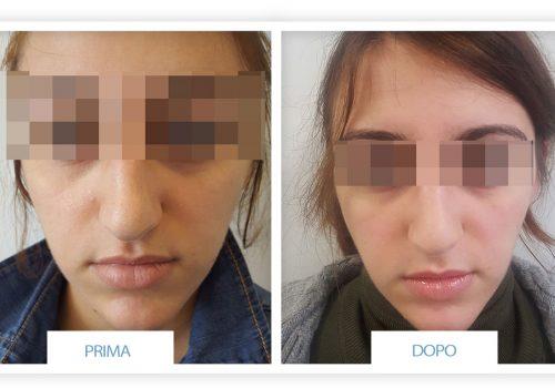 Rinoplastica Prima & Dopo 1
