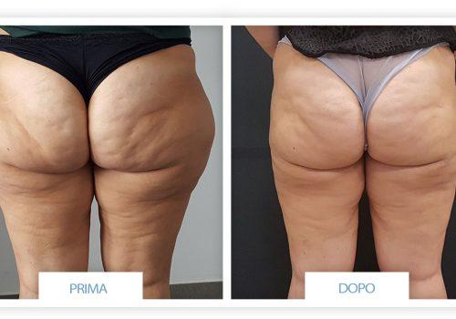 Liposuzione (addome, Glutei E Cosce) Prima & Dopo 6