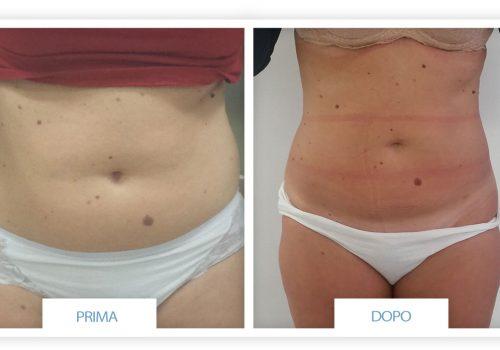 Liposuzione (addome, Glutei E Fianchi) Prima & Dopo 7