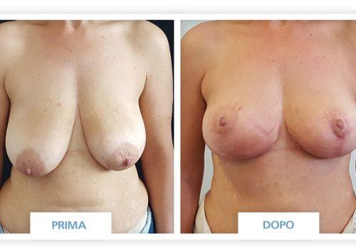Mastopessi Prima & Dopo 1