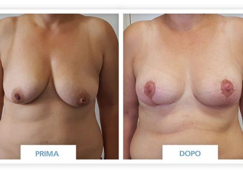 Mastopessi Prima & Dopo 2