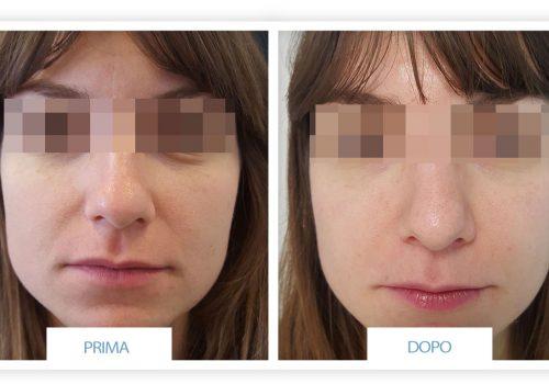 Rinoplastica Prima & Dopo 2