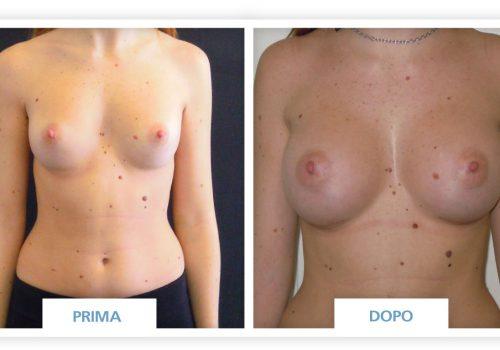 Mastoplastica Additiva Prima & Dopo 9 (Protesi Anatomiche 320 Cc)