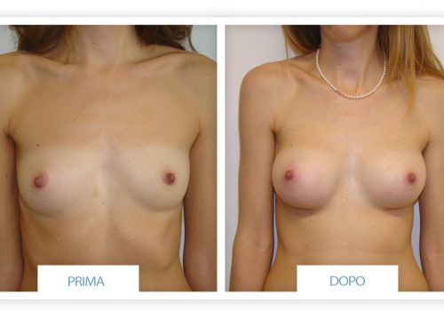Prima E Dopo Aumento Del Seno Protesi Anatomiche 245 Cc