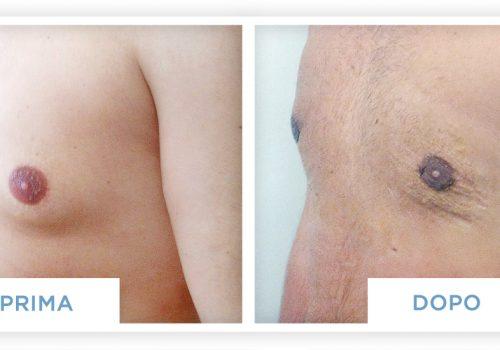 Prima & Dopo Ginecomastia