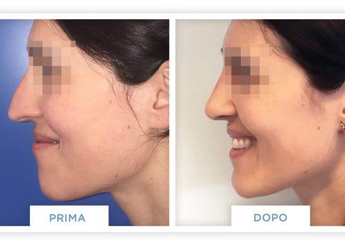 Rinoplastica Prima & Dopo 3