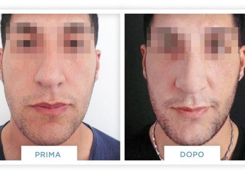 Rinoplastica Prima & Dopo 4