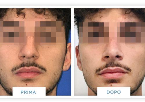 Rinoplastica Prima & Dopo 6
