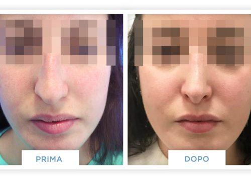 Rinoplastica Prima & Dopo 5