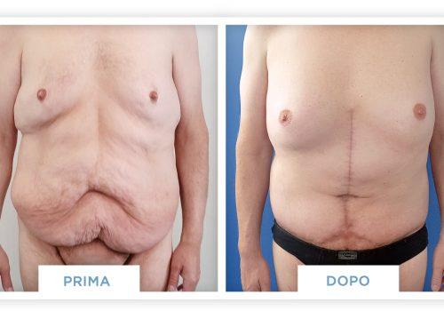 Addominoplastica Prima & Dopo 3