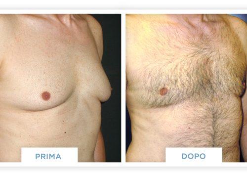 Ginecomastia Prima & Dopo 2