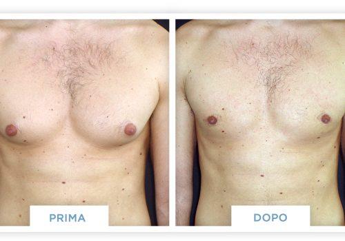 Ginecomastia Prima & Dopo 3