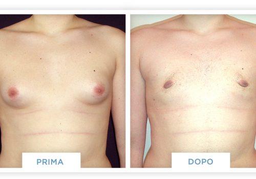 Ginecomastia Prima & Dopo 4