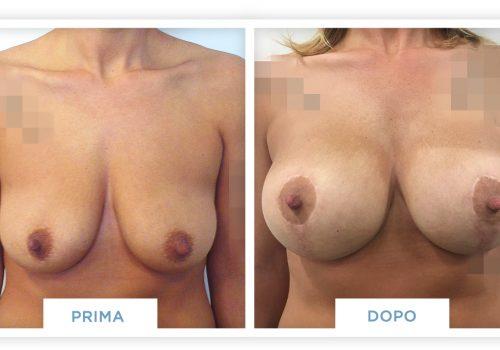 Mastopessi Prima & Dopo 4